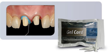 GEL-CORD PRO PACK TIPS 35-920
